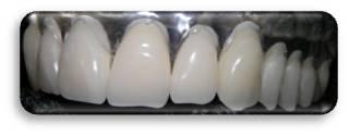 Zahntarife-Zahnersatz