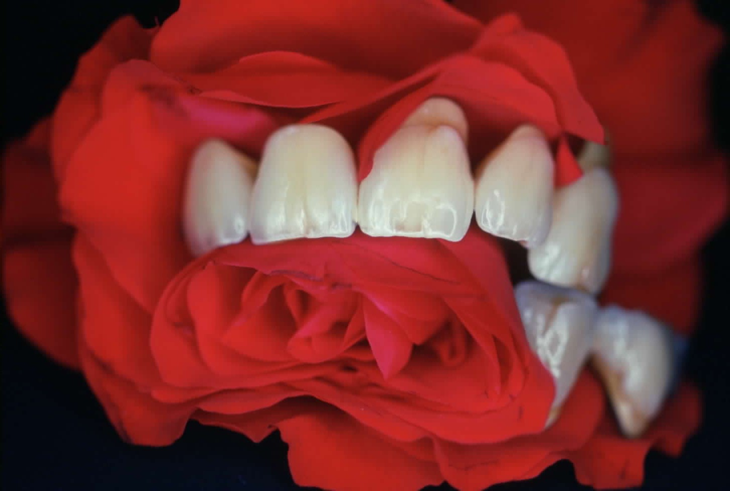 Zahnversicherungen