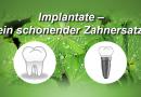Implantate – vollwertiger Zahnersatz