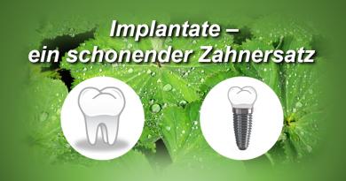 Implantate